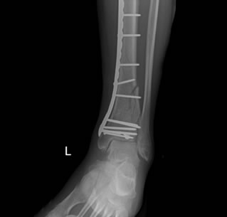 Pilon Fracture Treatment