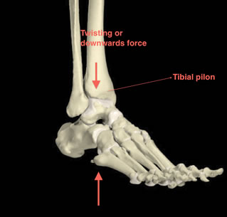 Tibial Pilon Fracture Treatment | Private Surgeon London ...