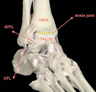 Ankle Ligament Repair Surgery Private Surgeon London